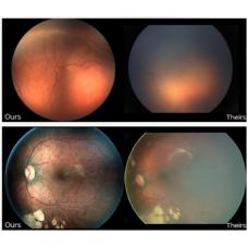 Система офтальмологическая для визуализации Icon с принадлежностями