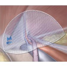 Паховая имплантат-сетка 3D MAX, анатомическая форма, классическое плетение, форма правая, размер М