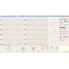 BTL CardioPoint-ECG C600