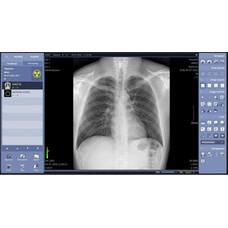 Цифровой рентгеновский аппарат Listem REX-525R: SMART